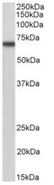 AP15922PU-N - Myotubularin / MTM1
