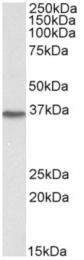 AP15952PU-N - DDAH1