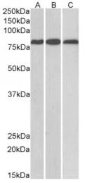 AP16104PU-N - MID2 / RNF60