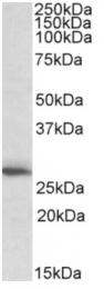 AP16113PU-N - CLPP