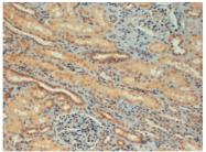 AP16141PU-N - FOXC1 / FKHL7 / FREAC3