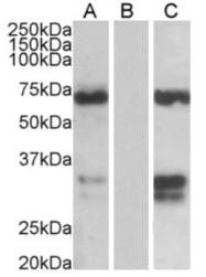 AP16142PU-N - FOXC2 / FKHL14 / MFH1