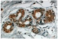 AP16190PU-N - Sorting nexin-5 (SNX5)