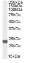 AP16212PU-N - Transgelin (TAGLN)