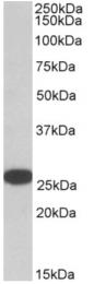 AP16253PU-N - RANBP1