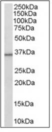 AP16309PU-N - 11-beta HSD1 / HSD11B1