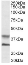 AP16334PU-N - Asporin