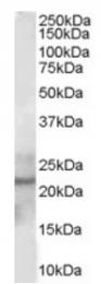 AP16385PU-N - Glutathione peroxidase 2 / GPX2