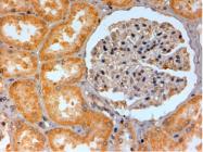 AP16412PU-N - Adenosine receptor A2b