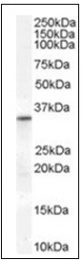 AP16532PU-N - VDAC2