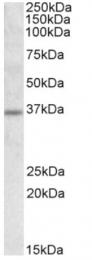 AP16618PU-N - SLC25A8 / UCP2