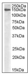 AP16722PU-N - Alpha-Mannosidase 2 / MAN2A1