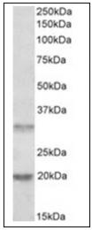 AP16738PU-N - L-asparaginase