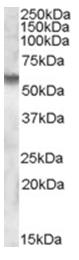 AP16843PU-N - IDS / SIDS