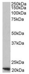 AP16873PU-N - Ferritin heavy chain (FTH1)