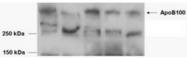 AP16922PU-N - Apolipoprotein B / Apo B