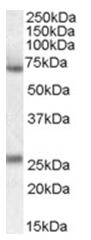 AP16950PU-N - Alpha-2-antiplasmin / SERPINF2