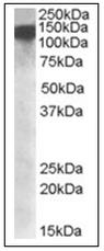 AP16965PU-N - DHX9