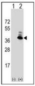 AP17137PU-N - Aminoacylase-2 / ACY2