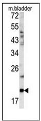AP17420PU-N - Glucagon