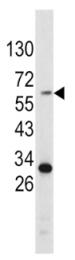 AP17815PU-N - Tyrosinase (TYR)