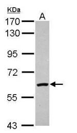 AP19020PU-N - Catalase