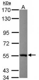 AP19024PU-N - Glutathione reductase