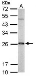 AP19026PU-N - Peroxiredoxin-3 / PRDX3