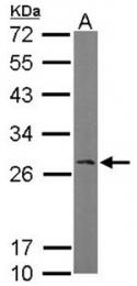 AP19035PU-N - RANBP1
