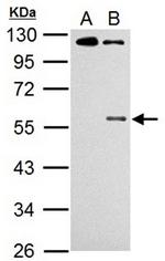 AP19047PU-N - CHK1