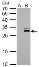 AP20003PU-N - KLK7 / Kallikrein-7