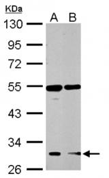 AP20041PU-N - Ghrelin receptor / GHSR