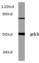 AP20197PU-N - TP53 / p53