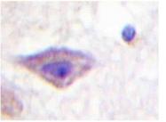 AP20345PU-N - Delta-type opioid receptor