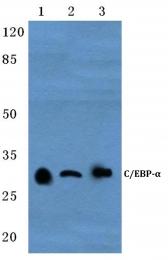 AP20354PU-N - CEBPA