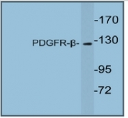 AP20360PU-N - CD140b / PDGFRB