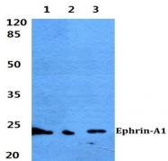 AP20378PU-N - Ephrin-A1