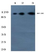 AP20389PU-N - MLLT10 / AF10