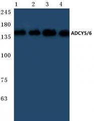 AP20397PU-N - Adenylate cyclase type 5