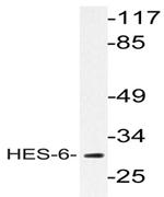 AP20454PU-N - HES6