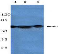 AP20480PU-N - AIF1
