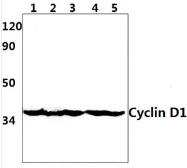 AP20500PU-N - Cyclin D1