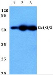 AP20514PU-N - ZIC1