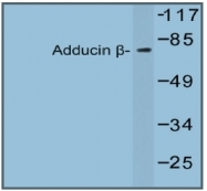 AP20545PU-N - Beta-adducin (ADD2)