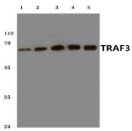 AP20591PU-N - TRAF3 / CRAF1