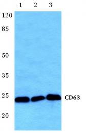 AP20598PU-N - CD63