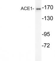 AP20608PU-N - ACE / CD143