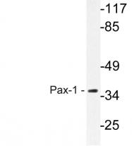 AP20616PU-N - PAX1