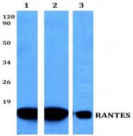 AP20618PU-N - RANTES / CCL5