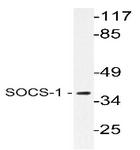 AP20630PU-N - SOCS1